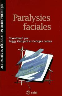 Paralysies faciales