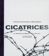 Cicatrices : la Grande guerre aujourd'hui
