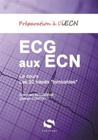 ECG aux ECN : le cours et les 20 tracés tombables