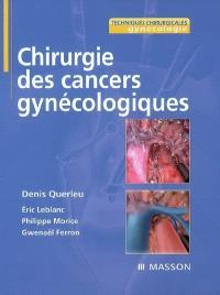 Chirurgie des cancers gynécologiques
