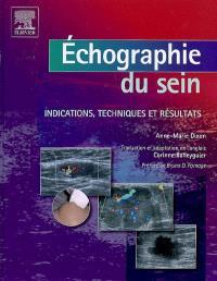 Echographie du sein : indications, techniques et résultats