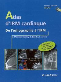 Atlas d'IRM cardiaque : de l'échographie à l'IRM