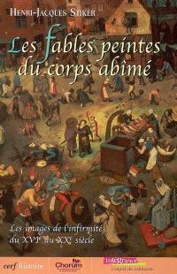 Les fables peintes du corps abîmé : les images de l'infirmité du XVIe au XXe siècle
