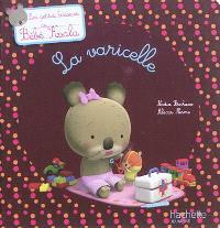 Bébé Koala, La varicelle