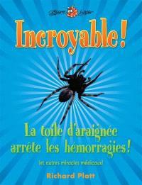 Incroyable! La toile d'araignée arrête les hémorragies!  : et autres miracles médicaux