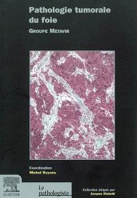 Pathologie tumorale du foie
