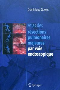 Atlas des résections pulmonaires majeures par voie endoscopique