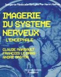 Imagerie du système nerveux : l'encéphale