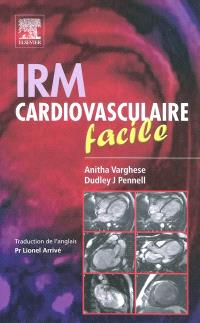 IRM cardiovasculaire facile