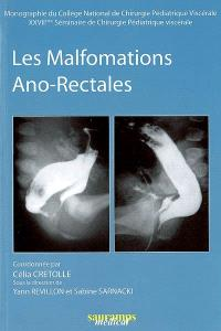 Les malformations ano-rectales