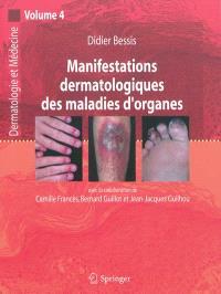 Dermatologie et médecine. Volume 4, Manifestations dermatologiques des maladies d'organes