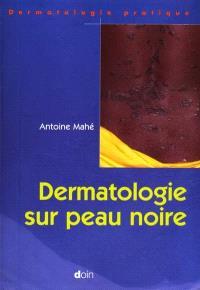 Dermatologie sur peau noire