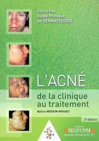 L'acné de la clinique au traitement