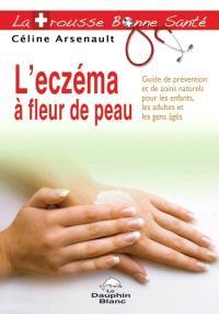 L'eczéma à fleur de peau  : guide de prévention et de soins naturels pour les enfants, les adultes et les gens âgés