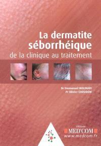 La dermatite séborrhéique : de la clinique au traitement