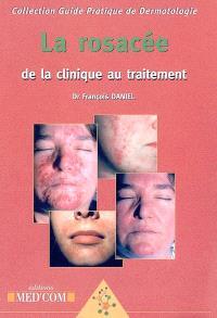 La rosacée : de la clinique au traitement