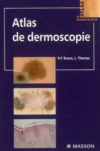 Atlas de dermoscopie