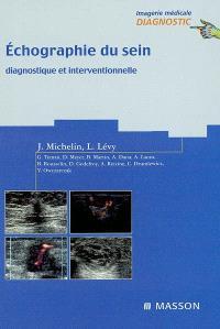 Echographie du sein : diagnostique et interventionnelle