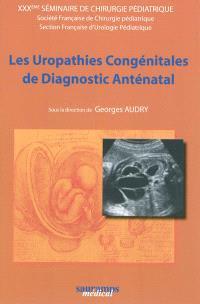 Les uropathies congénitales de diagnostic anténatal