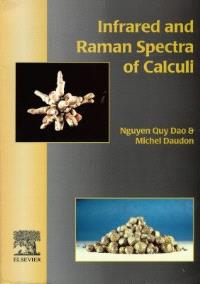 Infrared and raman spectra of calculi