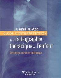 Guide d'interprétation de la radiographie thoracique de l'enfant : séméiologie normale et pathologique