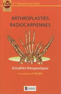 Arthroplasties radiocarpiennes : actualités thérapeutiques