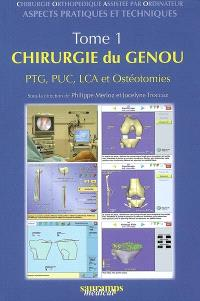 Chirurgie orthopédique assistée par ordinateur : aspects pratiques et techniques. Volume 1, Chirurgie du genou : PTG, PUC, LCA et ostéotomies