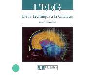 L'EEG : de la technique à la clinique