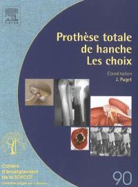 Prothèse totale de la hanche : les choix
