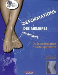 Déformations des membres inférieurs : de la consultation à l'acte opératoire