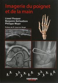 Imagerie du poignet et de la main
