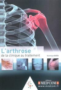 L'arthrose : de la clinique au traitement