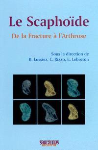 Le scaphoïde : de la fracture à l'arthrose