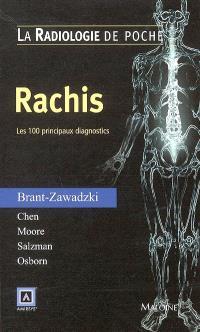 Rachis : les 100 principaux diagnostics