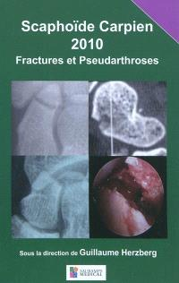 Scaphoïde carpien 2010 : fractures et pseudarthroses