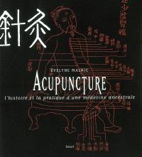 L'acupuncture : l'histoire et la pratique d'une médecine ancestrale