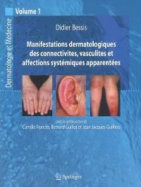 Dermatologie et médecine. Volume 1, Manifestations dermatologiques des connectivites, vasculites et affections systémiques apparentées