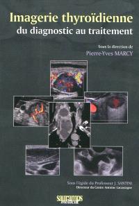 Imagerie thyroïdienne : du diagnostic au traitement