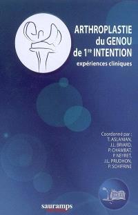 Arthroplastie du genou de 1re intention : expériences cliniques