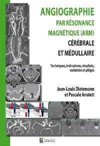 Angiographie par résonance magnétique (ARM) cérébrale et médullaire : techniques, indications, résultats, variantes et pièges